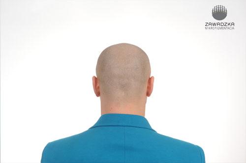 Mikropigmentacja skóry głowy - efekt po zabiegu